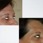 Blefaroplastica - pre e post intervento